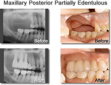 Maxillary Posterior Partially Edentulous